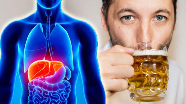Alcohol Damages Your Liver