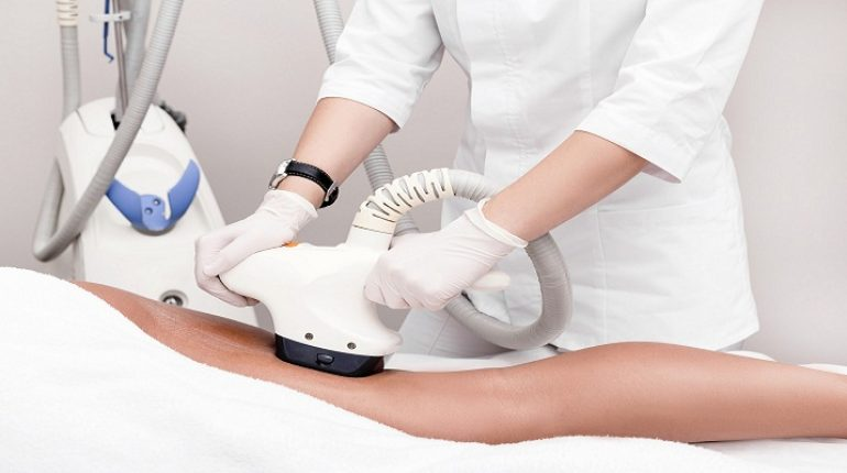 Laser Fat Removal
