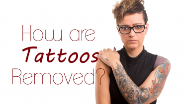 how-are-tattoos-removed