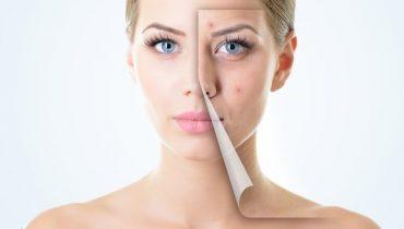 Medicine-for-Skin