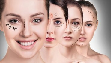 cosmetic-plastic-surgery