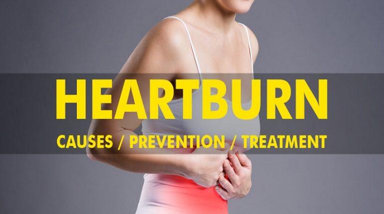 Heartburn Causes Prevention Treatment