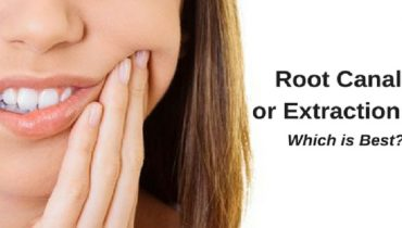 root-canal-or-extraction