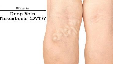 Vein Thrombosis