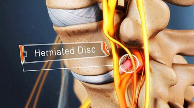 herniated-lumbar-disc