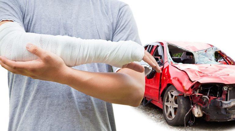 automobile injuries